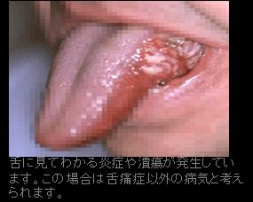 舌に見てわかる炎症や潰瘍が発生しています。この場合は舌痛症以外の病気と考えられます。