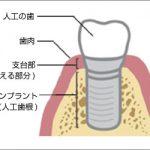 抜けた歯を取り戻す治療方法