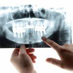 歯周病と関連のある2つの病気について