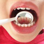 歯石のつく速度は体質で異なる??